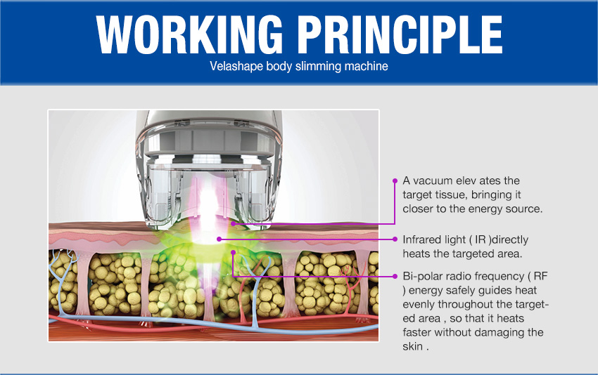 velashape machine feature working theory