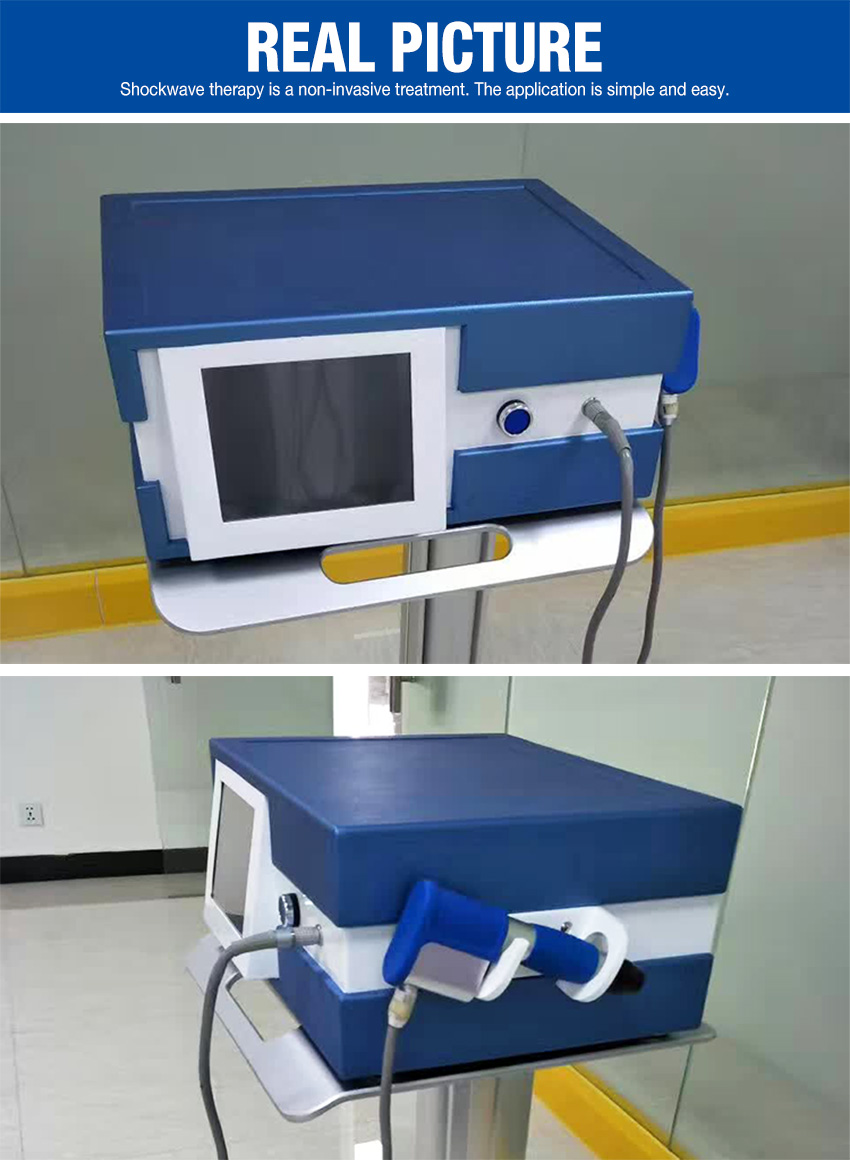 extracorporeal shock wave therapy real picture