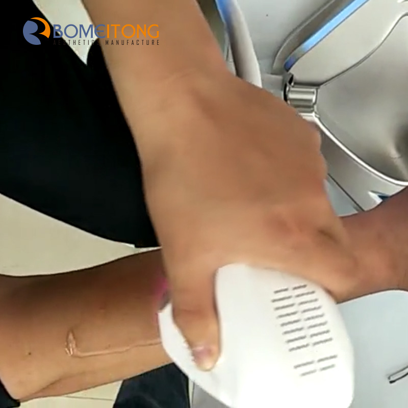 808nm machine home use diode laser hair removal
