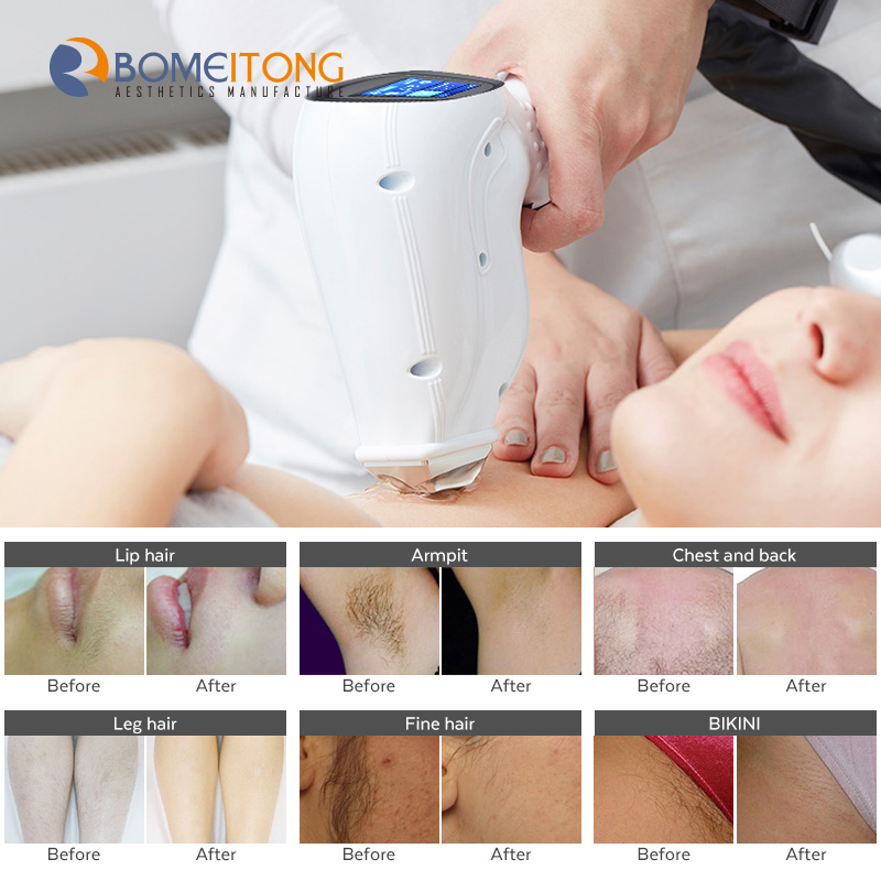 2020 double handle hair removal machine 755 808 1064nm diode laser
